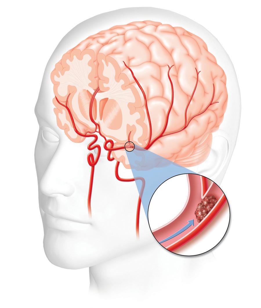 stroke-1
